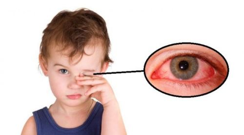 Ребенок трет глаз