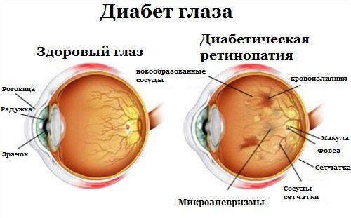 Диабет и зрение