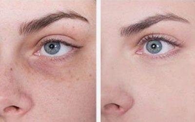 До и после массажа глаз