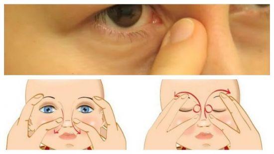 Массаж носослезного канала у ребенка