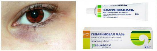 Гепариновая мазь от синяков под глазами