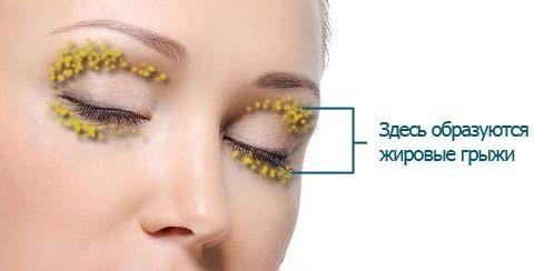 Глазные грыжи