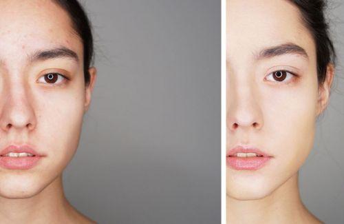 Лицо до нанесения базы под макияж и после
