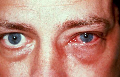 Покраснение глаза и отек век