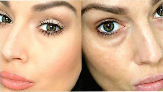 До и после операции по увеличению глаз