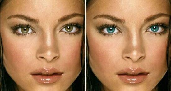 Лазерное изменение цвета глаз