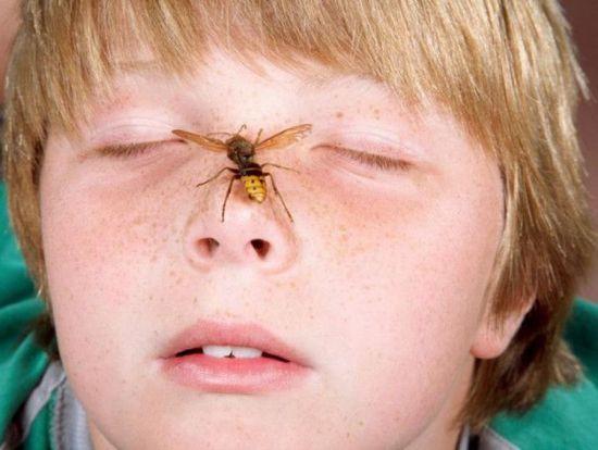 Пчела на лице у ребенка
