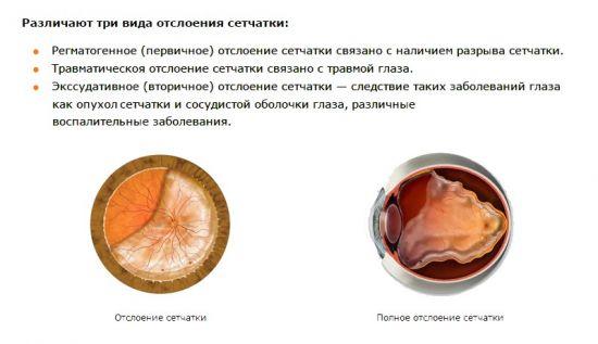 Отслоение сетчатки