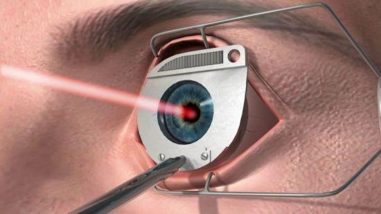 Лазерное лечение зрения