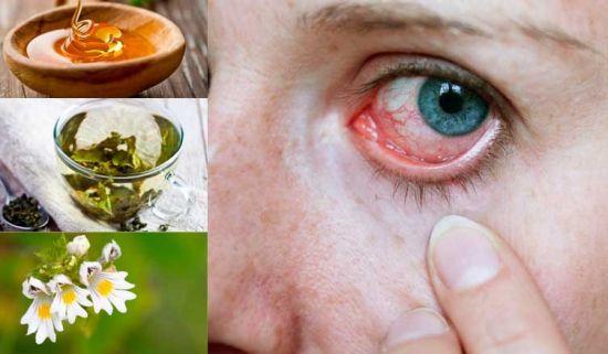 Народные средства для глаз