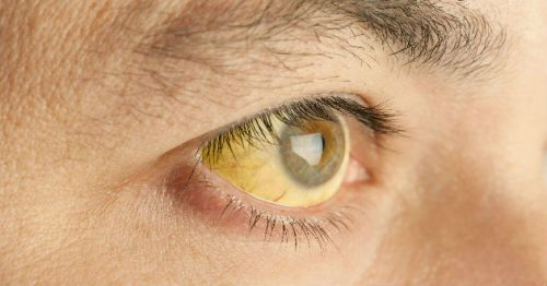 Желтые склеры