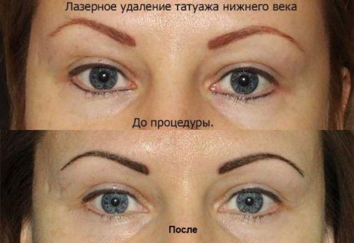 До удаления татуажа глаз и после