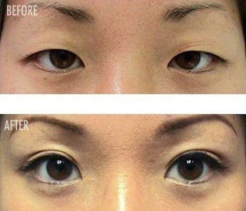 Глаза до увеличения и после