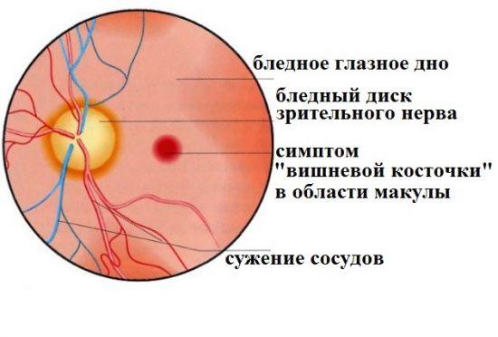 Тромбоз центральной артерии сетчатки