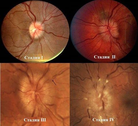 Застойный диск зрительного нерва