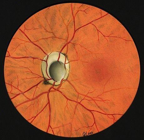 Колобома зрительного нерва