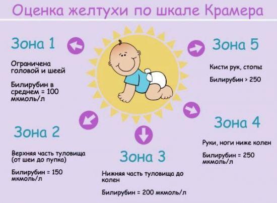 Оценка желтухи у новорожденного