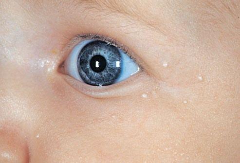 Миллиумы вокруг глаз у ребенка