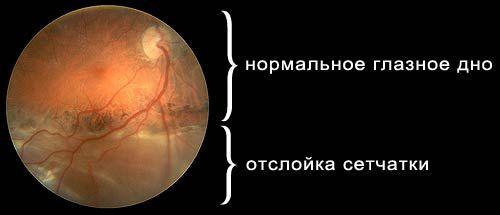 Отслойка сетчатки