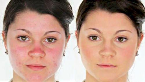 Проблемная кожа до нанесения тональника и после