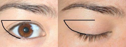 Корректировка формы глаза
