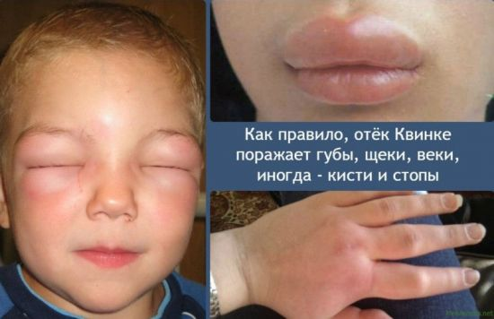 Отек Квинке на лице ребенка