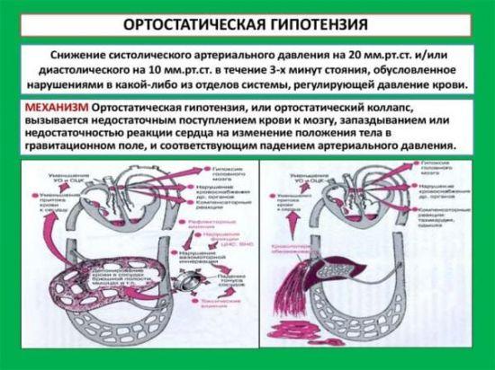 Описание ортостатической гипотензии