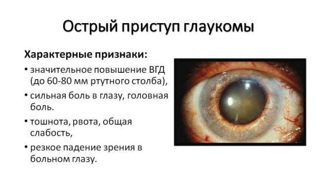Признаки приступа глаукомы