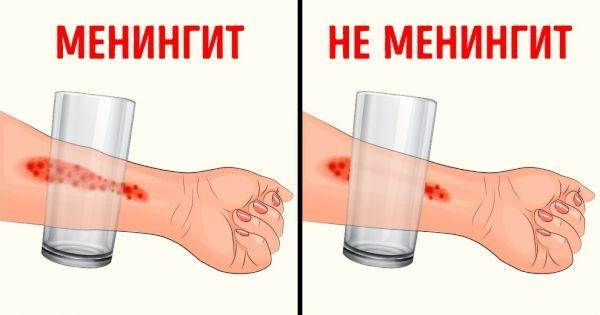 Катание стаканом по руке с сыпью