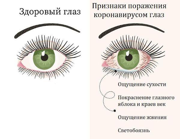 Глаз, пораженный коронавирусом