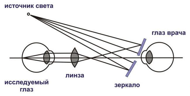 Схема непрямой офтальмоскопии