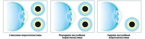 Виды кератопластики