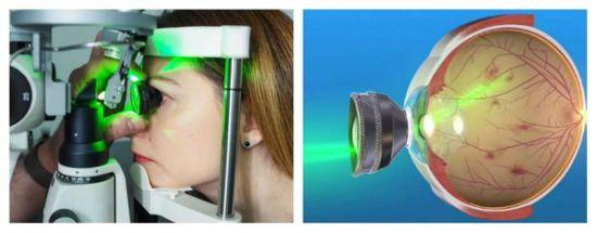 Лазерное лечение отслоения сетчатки
