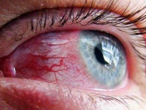Красные сосуды в глазу