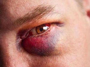 Вылечить синяк под глазом в домашних условиях — Лечение артроза и артрита, лечение подагры