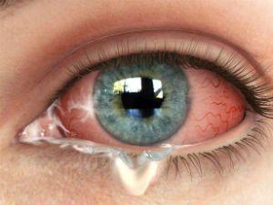 Выделения из глаза