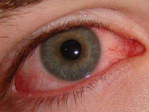 Красный глаз