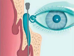 Зондирование носослезного канала