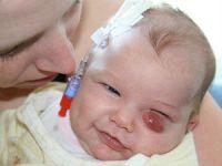 Дакриоцистит у новорожденного малыша