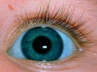 Голубые склеры